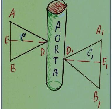 aorta budetta
